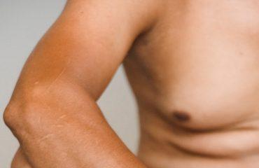 Reducir pecho masculino - Ginecomastia