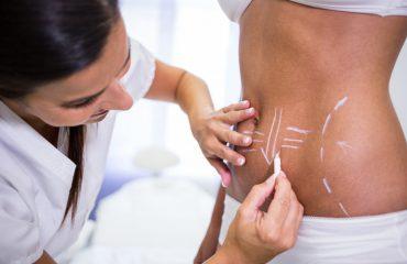 SmartLipo - Clinica de cirugía estética - Centro Europeo de Cirugía Estética
